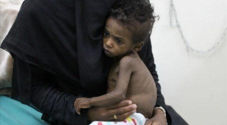 كل 10 دقائق طفل يمنى يموت بسبب سوء التغذية